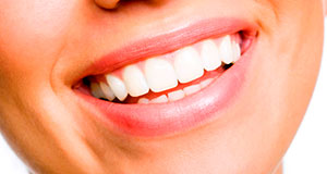 Implants dentals